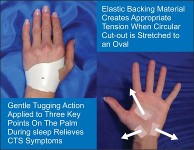 Carpal Solution Therapy