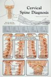 Cervical Spine Diagnosis Poster