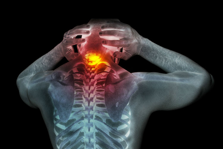people are given pain-killing drugs to calm down these sensations, or given physical therapy  to retrain the nerves in the nervous system to respond normally. New drugs may be developed that don't just mask the symptoms of pain, but address glial cell malfunction, too.