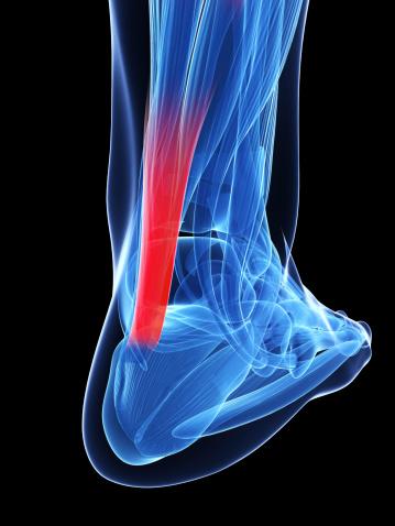 CE_Achilles_tendon